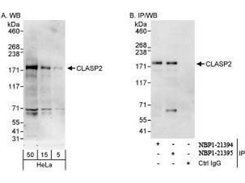 Western Blotting (WB) image for anti-CLASP2 antibody (Cytoplasmic Linker Associated Protein 2) (AA 275-325) (ABIN439355)