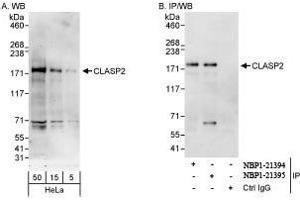 Western Blotting (WB) image for anti-CLASP2 antibody (Cytoplasmic Linker Associated Protein 2) (ABIN439355)