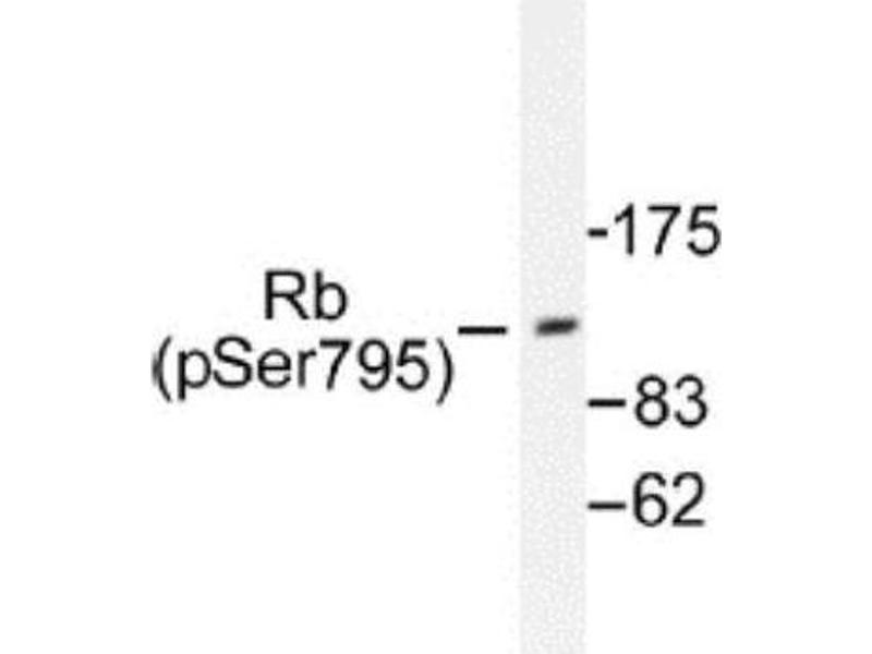 Western Blotting (WB) image for anti-Retinoblastoma 1 (RB1) antibody (ABIN4349478)