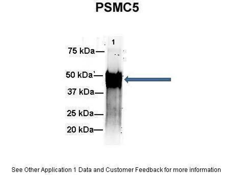 Immunoprecipitation (IP) image for anti-Proteasome (Prosome, Macropain) 26S Subunit, ATPase, 5 (PSMC5) (C-Term) antibody (ABIN2780449)