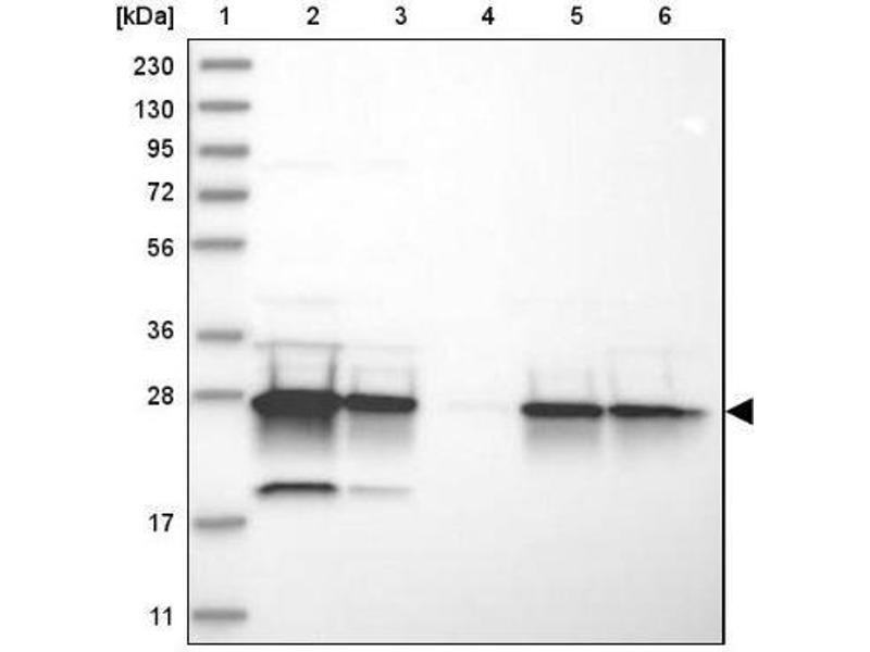 Western Blotting (WB) image for anti-EPO antibody (Erythropoietin) (ABIN4309573)
