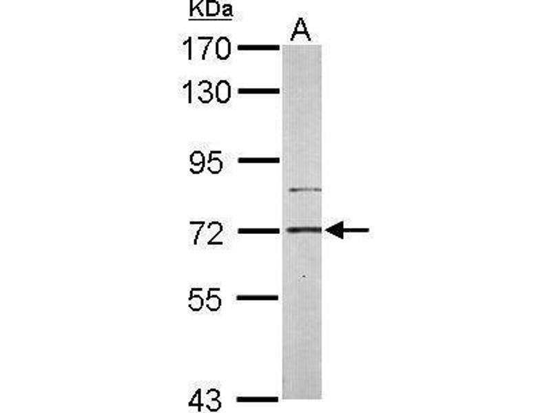 Western Blotting (WB) image for anti-Phosphatidylinositol-4-Phosphate 5-Kinase, Type I, gamma (PIP5K1C) (Internal Region) antibody (ABIN2856135)