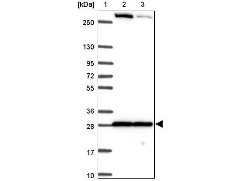Western Blotting (WB) image for anti-MAPK12 antibody (Mitogen-Activated Protein Kinase 12) (ABIN4342707)
