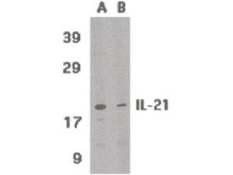 Western Blotting (WB) image for anti-IL21 antibody (Interleukin 21) (Center) (ABIN315232)