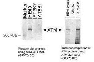 Immunoprecipitation (IP) image for anti-ATM antibody (Ataxia Telangiectasia Mutated) (ABIN136323)