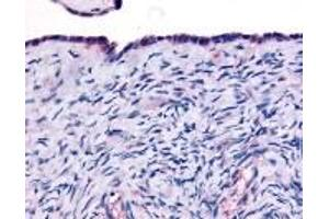 Immunohistochemistry (IHC) image for anti-Thyroid Hormone Receptor, alpha (THRA) antibody (ABIN2469425)