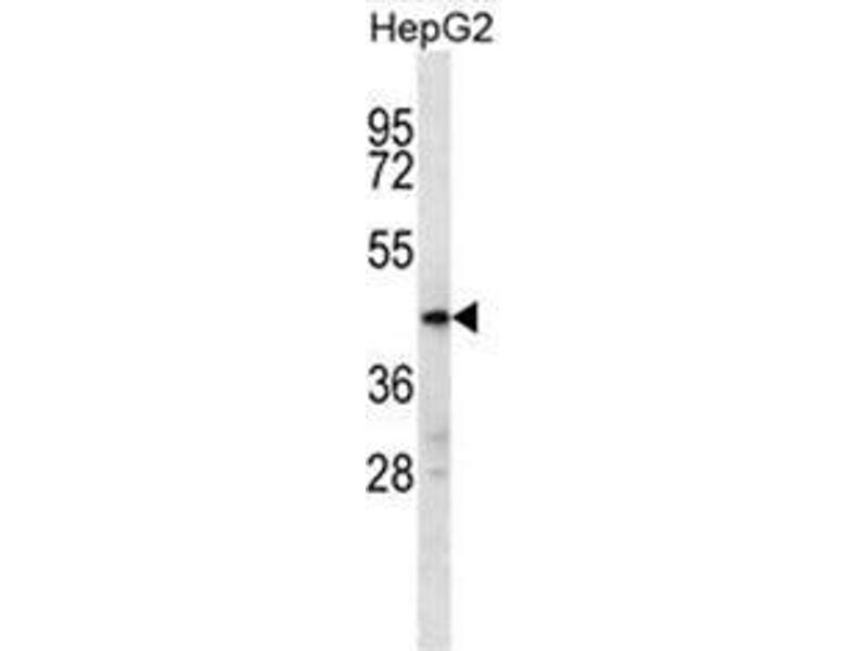 Western Blotting (WB) image for anti-Chromosome 10 Open Reading Frame 129 (C10ORF129) (AA 432-460), (C-Term) antibody (ABIN950706)