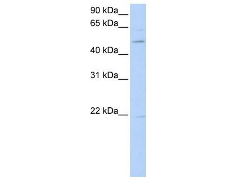 Western Blotting (WB) image for anti-RAR-Related Orphan Receptor B (RORB) (C-Term) antibody (ABIN2780814)