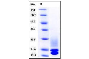 Image no. 1 for Cystatin C (CST3) (AA 1-140) (Active) protein (His tag) (ABIN2007555)