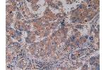 Immunohistochemistry (Paraffin-embedded Sections) (IHC (p)) image for anti-CD40 Molecule, TNF Receptor Superfamily Member 5 (CD40) (AA 26-187) antibody (ABIN2895750)