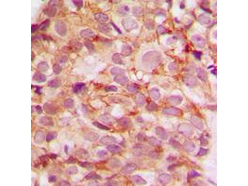 Image no. 2 for anti-Collagen, Type V, alpha 3 (COL5A3) (N-Term) antibody (ABIN2707441)