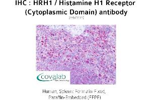 Image no. 1 for anti-Histamine Receptor H1 (HRH1) (3rd Cytoplasmic Domain) antibody (ABIN1735570)