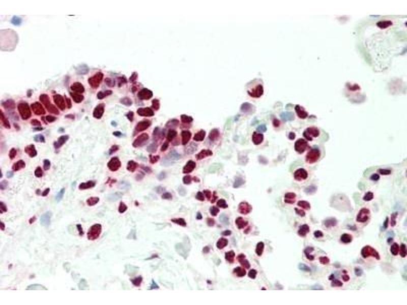 Immunohistochemistry (IHC) image for anti-Nuclear Receptor Subfamily 2, Group F, Member 6 (NR2F6) (N-Term) antibody (ABIN1979078)