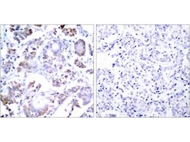 Immunohistochemistry (IHC) image for anti-Nuclear Factor-KB P65 (NFkBP65) (AA 221-270) antibody (ABIN1532958)