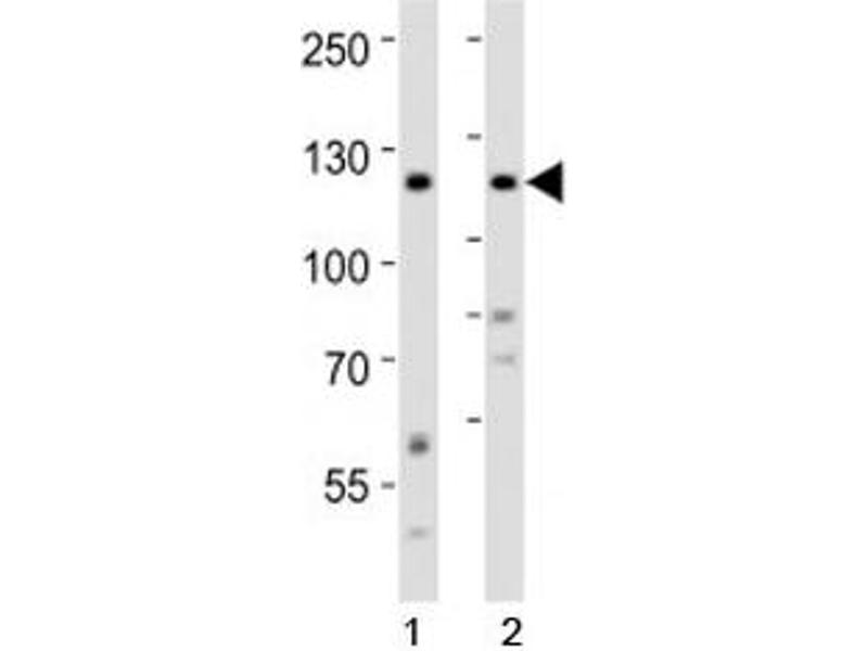 Western Blotting (WB) image for anti-ROR2 antibody (Receptor Tyrosine Kinase-Like Orphan Receptor 2) (AA 750-800) (ABIN3028972)