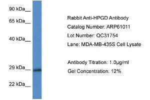 Image no. 1 for anti-Hydroxyprostaglandin Dehydrogenase 15-(NAD) (HPGD) (N-Term) antibody (ABIN2788653)