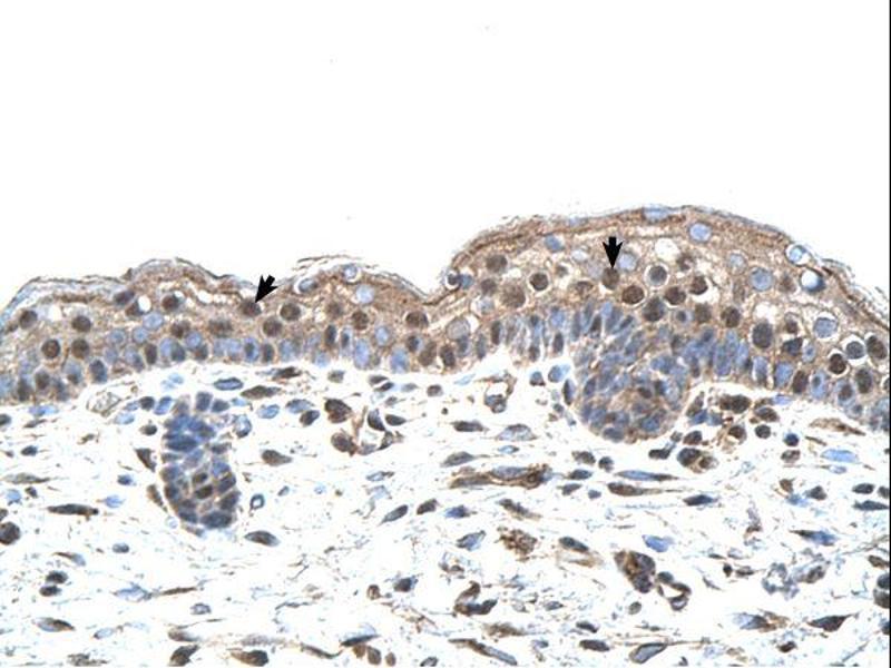 Immunohistochemistry (IHC) image for anti-Interferon Regulatory Factor 4 (IRF4) (N-Term) antibody (ABIN2780428)