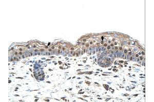 Immunohistochemistry (IHC) image for anti-IRF4 antibody (Interferon Regulatory Factor 4) (N-Term) (ABIN2780428)