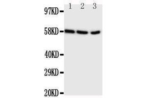 Western Blotting (WB) image for anti-Cytochrome P450, Family 19, Subfamily A, Polypeptide 1 (CYP19A1) (AA 455-476), (C-Term) antibody (ABIN3044490)