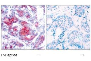 image for anti-STAT4 antibody (Signal Transducer and Activator of Transcription 4) (pTyr693) (ABIN196694)