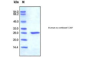 Image no. 1 for C-Reactive Protein (CRP) protein (His tag) (ABIN1888654)