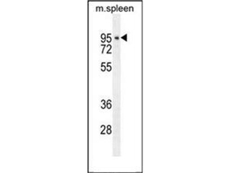 Western Blotting (WB) image for anti-Denticleless E3 Ubiquitin Protein Ligase Homolog (Drosophila) (DTL) (AA 229-256), (Middle Region) antibody (ABIN951451)