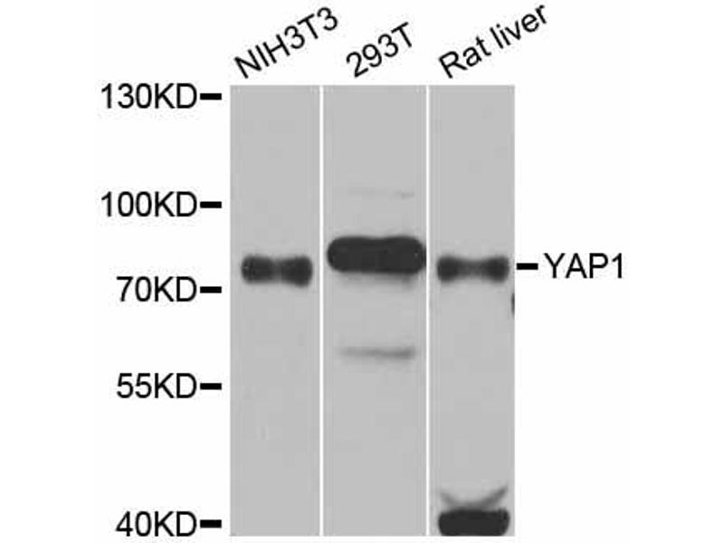 Image no. 1 for anti-Yes-Associated Protein 1 (YAP1) antibody (ABIN6566736)