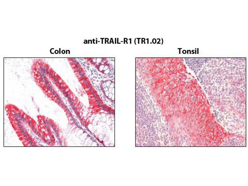 Immunohistochemistry (IHC) image for anti-TNFRSF10A antibody (Tumor Necrosis Factor Receptor Superfamily, Member 10a) (ABIN1169238)