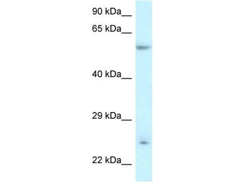 Western Blotting (WB) image for anti-Der1-Like Domain Family, Member 3 (DERL3) (Middle Region) antibody (ABIN2781868)