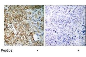 Immunohistochemistry (IHC) image for anti-IGF1R antibody (Insulin-Like Growth Factor 1 Receptor) (ABIN257345)