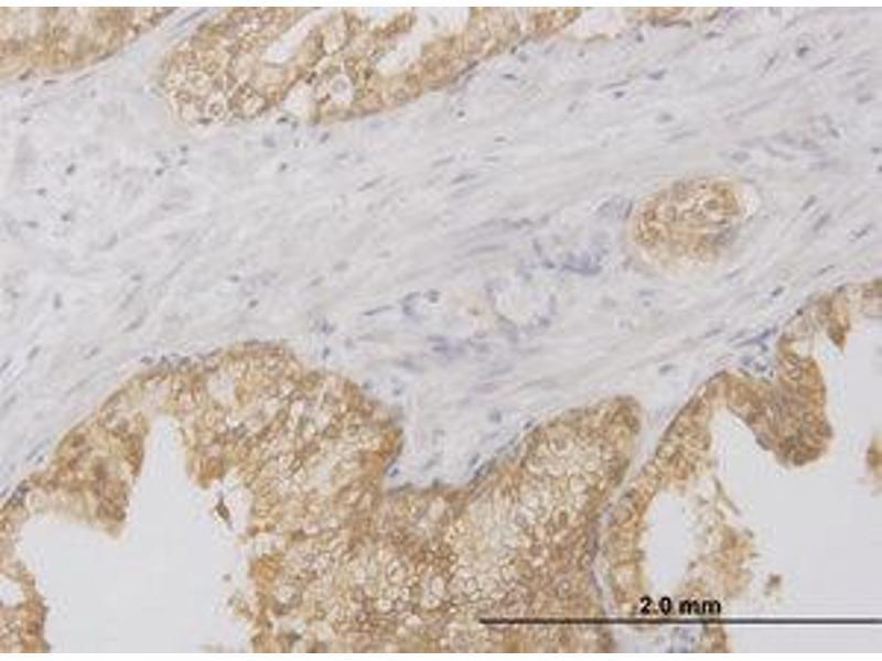 image for anti-Receptor-Interacting Serine-threonine Kinase 2 (RIPK2) (AA 431-541) antibody (ABIN599062)