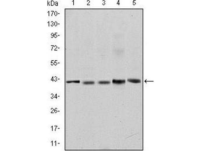 Western Blotting (WB) image for anti-SMN1 / SMN2 antibody (ABIN1109075)