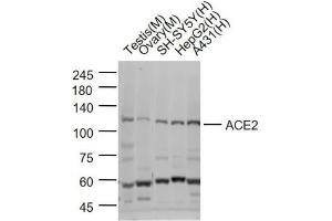 Image no. 2 for anti-Angiotensin I Converting Enzyme 2 (ACE2) antibody (ABIN6952452)