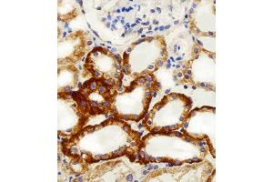 Image no. 1 for anti-NADH Dehydrogenase (Ubiquinone) 1, Subcomplex Unknown, 2, 14.5kDa (NDUFC2) (AA 5-39), (N-Term) antibody (ABIN5537741)