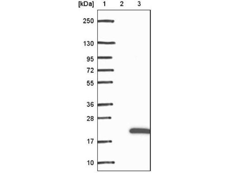 Western Blotting (WB) image for anti-RBP2 抗体 (Retinol Binding Protein 2, Cellular) (ABIN4349657)