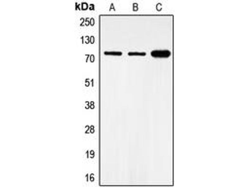 Western Blotting (WB) image for anti-FOXO1 antibody (Forkhead Box O1) (pSer319) (ABIN2706172)