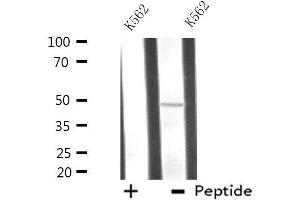 Image no. 1 for anti-Autophagy related 4C Cysteine Peptidase (ATG4C) antibody (ABIN6258589)