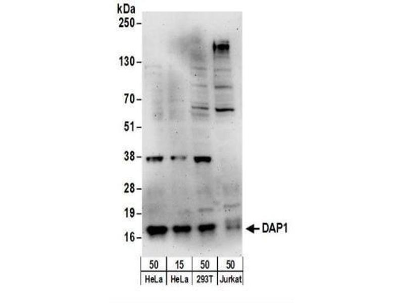 Western Blotting (WB) image for anti-SMT3 Suppressor of Mif Two 3 Homolog 1 (S. Cerevisiae) (SUMO1) (AA 52-102) antibody (ABIN4304254)