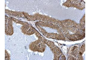 Image no. 2 for anti-Fission 1 (Mitochondrial Outer Membrane) Homolog (S. Cerevisiae) (FIS1) (full length) antibody (ABIN2856782)