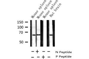 Image no. 4 for anti-Nuclear Factor-KB P65 (NFkBP65) (pSer281) antibody (ABIN6255162)