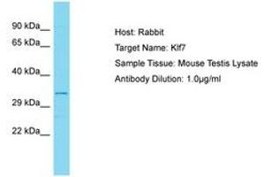 Image no. 1 for anti-Kruppel-Like Factor 7 (Ubiquitous) (KLF7) (AA 133-182) antibody (ABIN6750308)