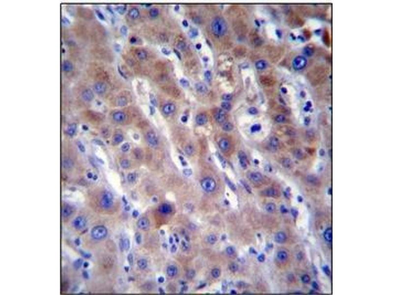 Immunohistochemistry (Paraffin-embedded Sections) (IHC (p)) image for anti-FADS2 antibody (Fatty Acid Desaturase 2) (AA 78-108) (ABIN952158)