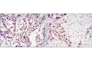 Immunohistochemistry (IHC) image for anti-Signal Transducer and Activator of Transcription 3 (Acute-Phase Response Factor) (STAT3) antibody (ABIN1109152)