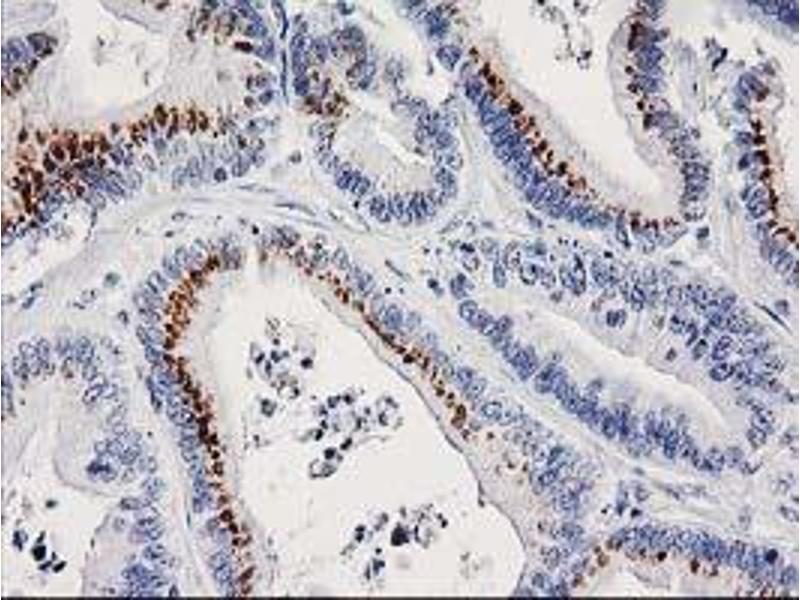 Immunohistochemistry (IHC) image for anti-FGFR2 antibody (Fibroblast Growth Factor Receptor 2) (ABIN2454585)