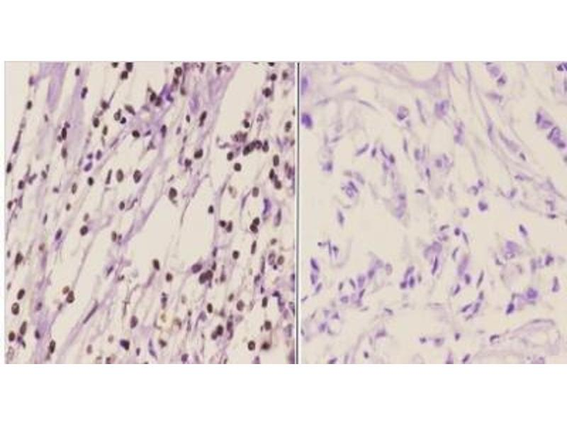 Immunohistochemistry (Paraffin-embedded Sections) (IHC (p)) image for anti-CHEK1 antibody (Checkpoint Kinase 1) (pSer317) (ABIN4297951)