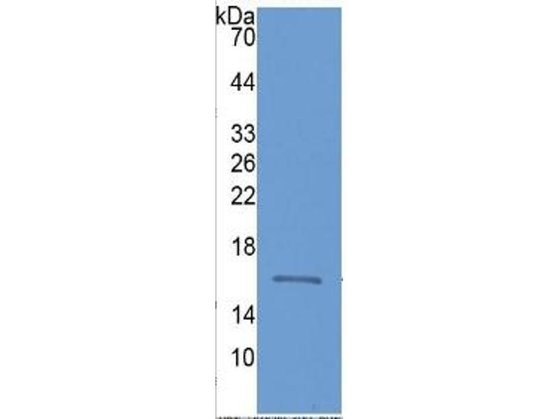 Fatty Acid Binding Protein 3, Muscle and Heart (FABP3) ELISA Kit (3)