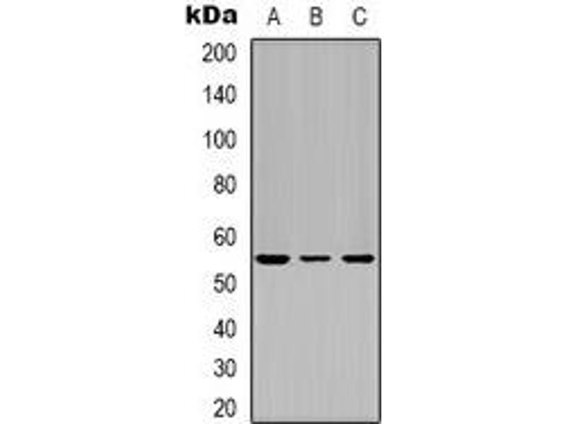 Western Blotting (WB) image for anti-Tumor Protein P53 (TP53) (N-Term) antibody (ABIN2957704)