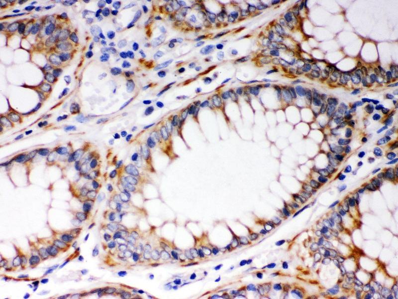 Immunohistochemistry (IHC) image for anti-BCL2-Antagonist/killer 1 (BAK1) (AA 22-211) antibody (ABIN3042342)