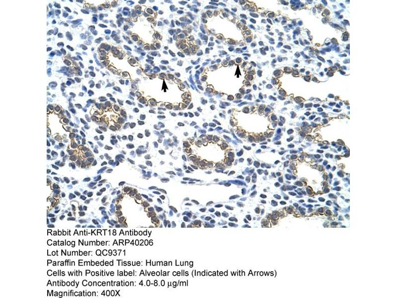 Immunohistochemistry (IHC) image for anti-KRT18 antibody (Keratin 18) (C-Term) (ABIN2778670)
