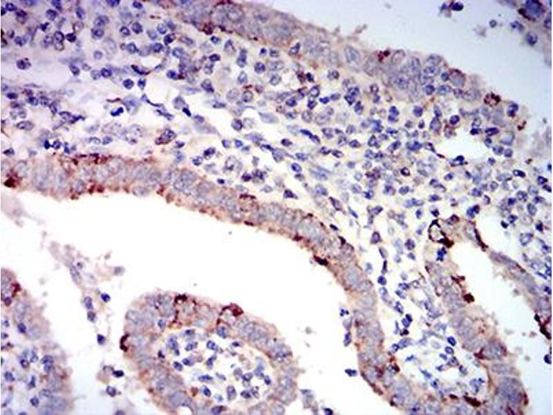 Immunohistochemistry (IHC) image for anti-BCL2-Associated X Protein (BAX) (AA 13-160) antibody (ABIN5611252)